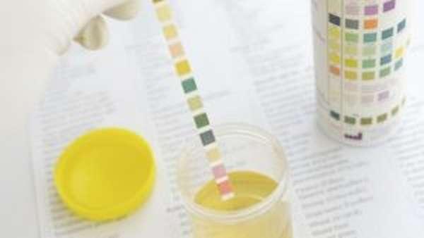 тест полоски на сахар в моче