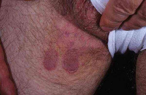 Может ли атопический дерматит проявляться на половом органе