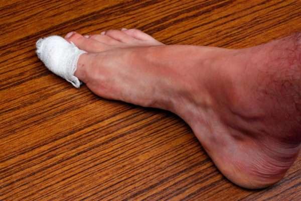 Крем от вросшего ногтя на ноге