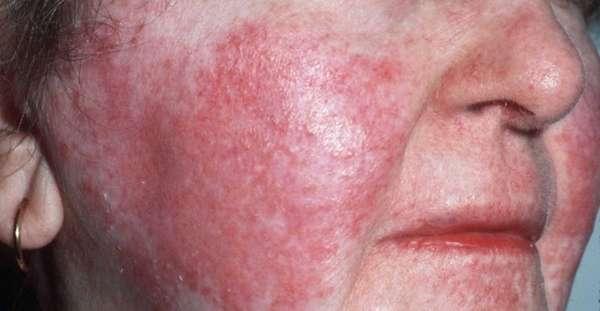 Какие виды экзем появляются на лице и их лечение