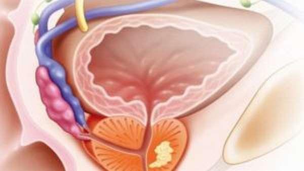 раковые образования в предстательной железе
