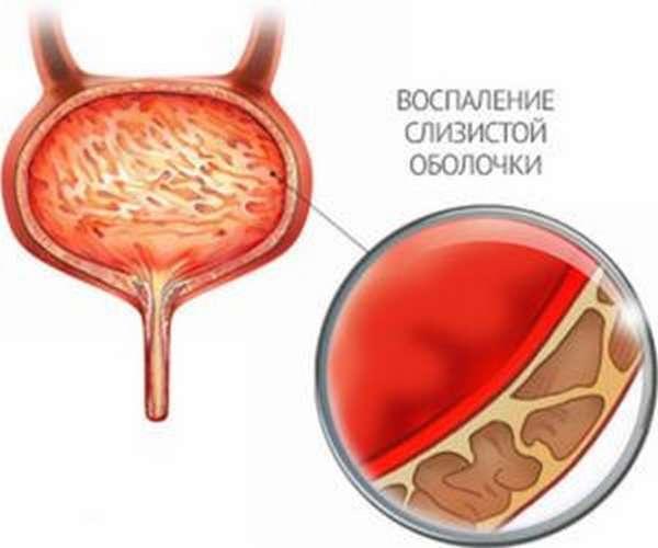 Моча с кровью у женщин при цистите