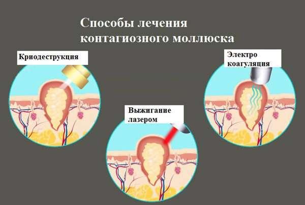 Причины появления и варианты лечения контагиозного моллюска