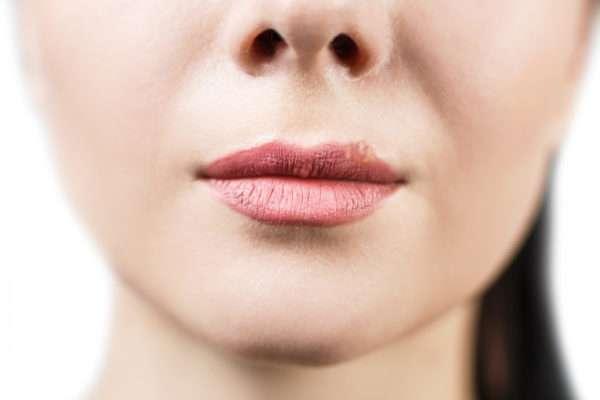Как отличить герпес от простуды на губах