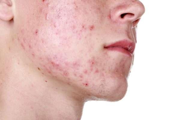 Чем умываться при демодекозе для очищения и восстановления кожи