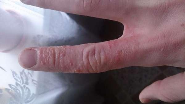 Гнойник на пальце руки и ладонях: причины появления, лечение