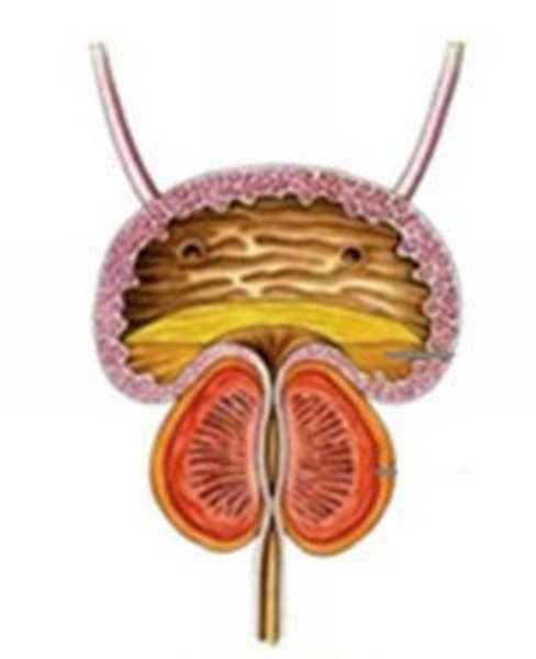 Операция по удалению аденомы простаты, аденомэктомия