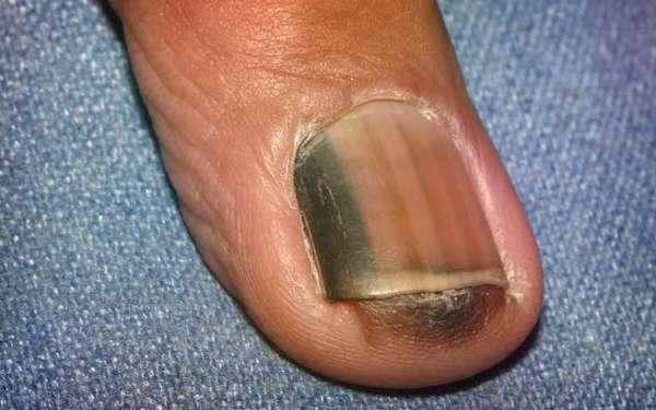 Меланома ногтя как лечить