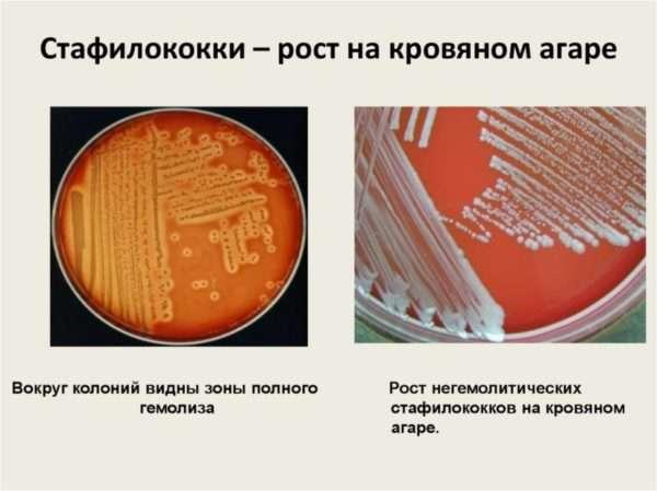 Стафилококк эпидермальный в мазке у мужчин