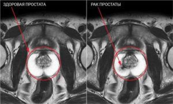 Снимок МРТ с раком простаты