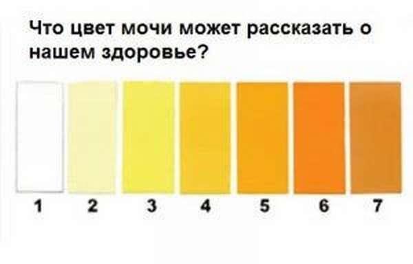 Цвет мочи при беременности (28 фото): почему темная на ранних и поздних сроках, меняется ли и какой должен быть цвет