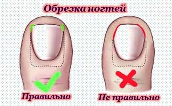 Гной под ногтем на большом пальце ноги