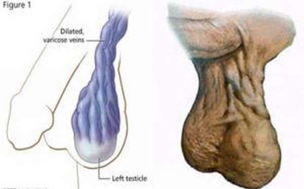 половые органы