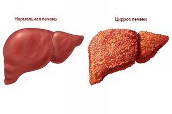 Какие заболевания может показать анализ