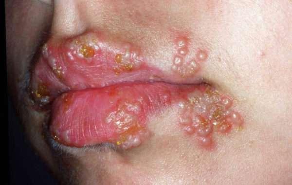 Типы герпесвируса и их характеристика