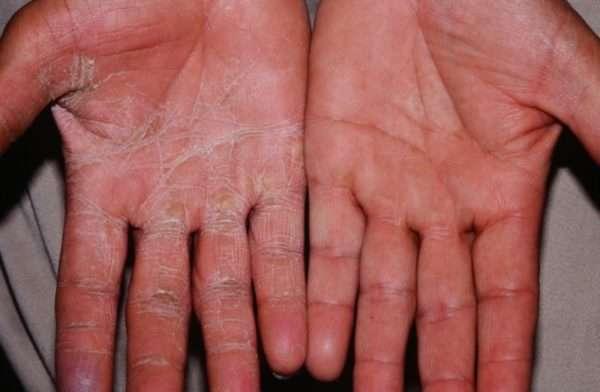 Симптомы, классификация и лечение гиперкератоза в домашних условиях