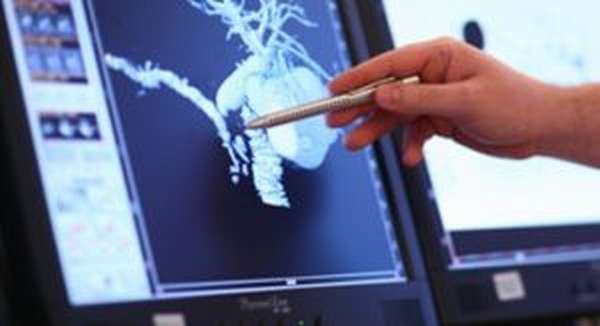 3d изображение, полученное с томографа