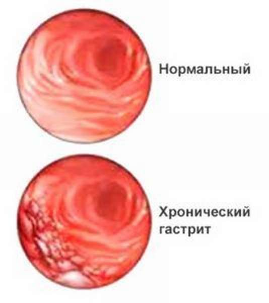 При обострении гастрита нельзя использовать отвар из Шиповника