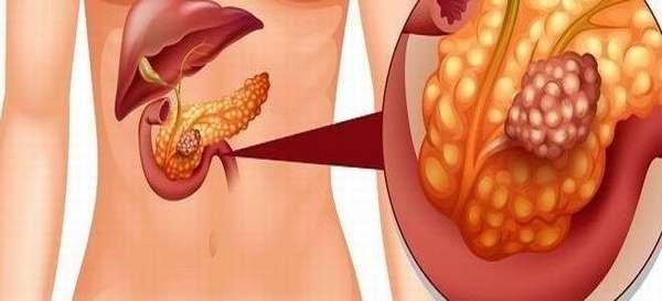 Сколько можно прожить с 3 стадией рака поджелудочной железы?