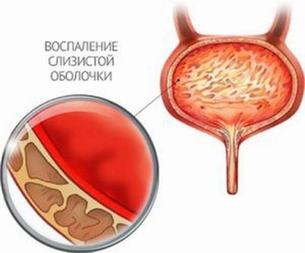 Дефлорационный цистит лечение 60