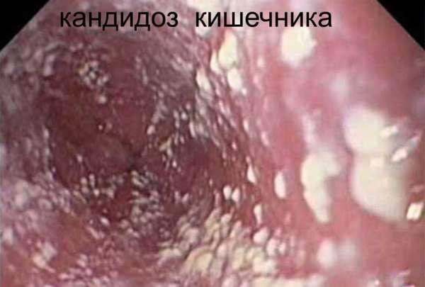 Грибок заднего прохода: лечение у ребенка и взрослых, симптоматика микоза на попе