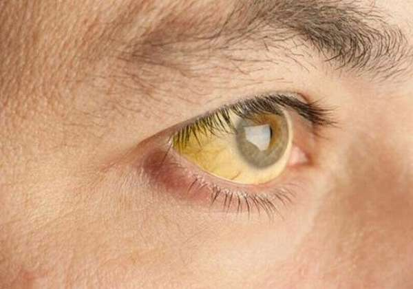 Желтушность склер глаз
