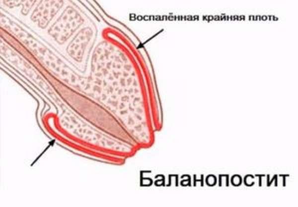 Баланопостит – воспалительный процесс, охватывающий крайнюю плоть