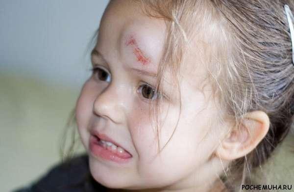 Ребенок ушиб голову чем помазать