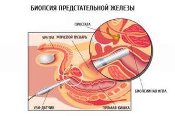 Анализ биопсии простаты сроки