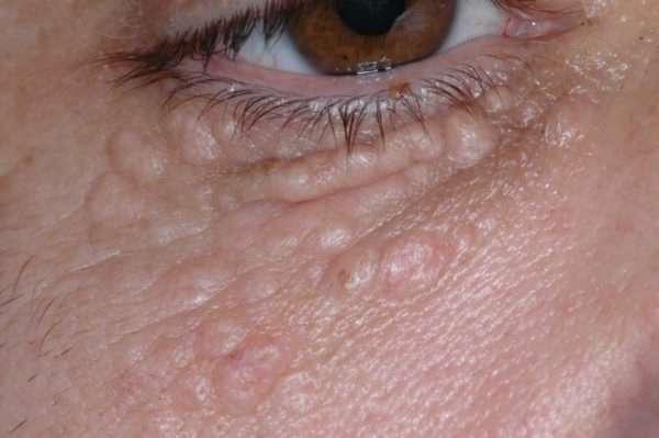 Чем смазывать мелкие жировики на лице. Как убрать жировики на лице народными средствами. Причины появления жировиков на коже