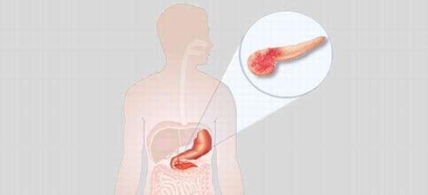 Незначительные диффузные изменения паренхимы поджелудочной железы