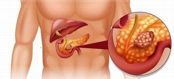 Особенности диффузных изменений поджелудочной железы