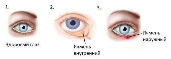 От чего отек и зуд вокруг глаз