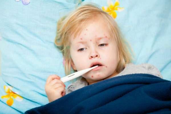 Отличие ветрянки от аллергии у детей