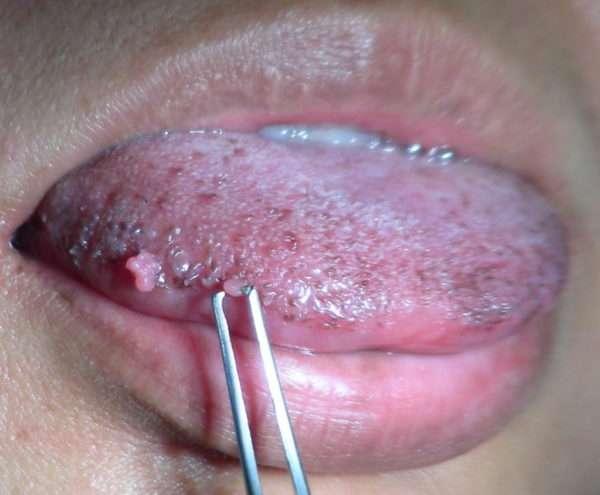 Как распознать папилломы во рту и избавиться от них