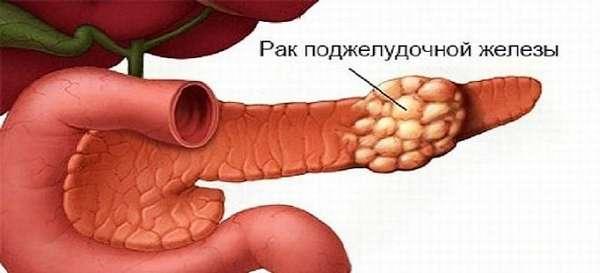 Симптомы и проявления рака поджелудочной железы
