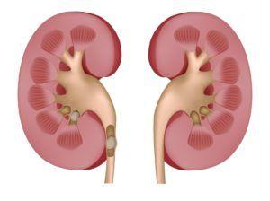 камни в мочеполовой системе