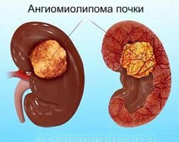 Ангиомиолипома