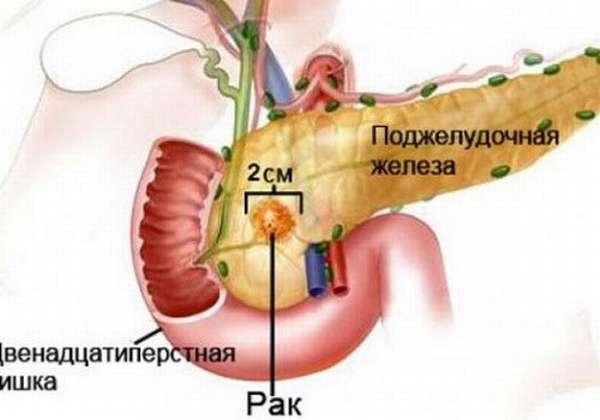 Рак головки ПЖ