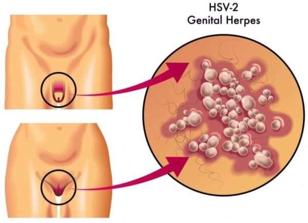 Как избежать заражение ребенка вирусом при генитальном герпесе во время беременности