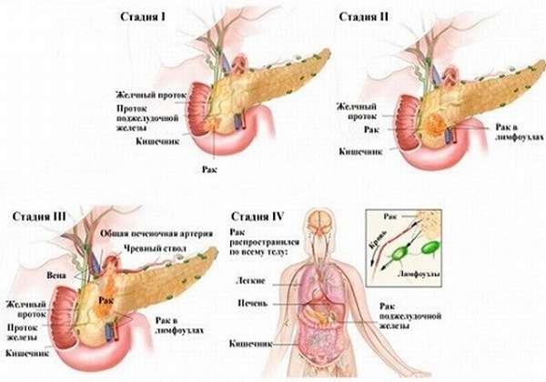 стадии рака ПЖ