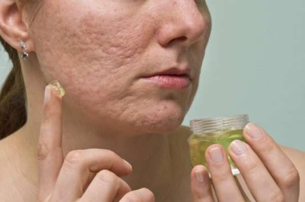 Какой крем от рубцов на лице после прыщей помогает избавиться от пятен и шрамиков