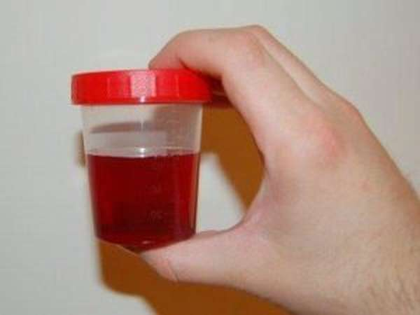 присутствие крови в моче