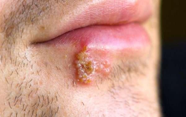 Инкубационный период герпеса: как обуздать коварный вирус