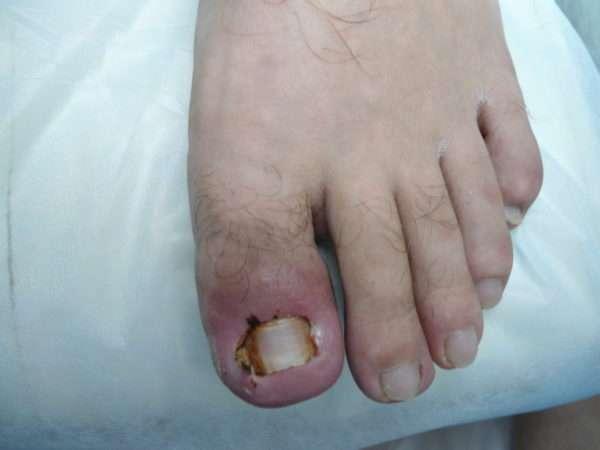 Мазь от нарывов и воспалений на пальце
