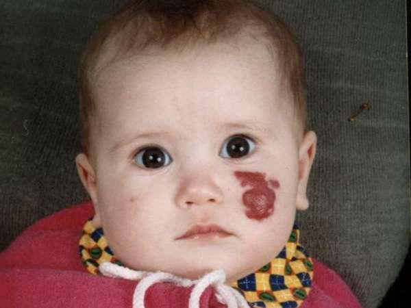 Родимое пятно у новорожденного на пояснице