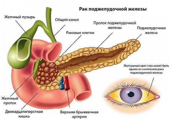 Пожелтение склер - признака рака ПЖ