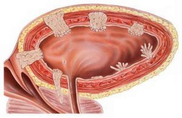 Рак мочевого пузыря является опухолью, склонной к множественным рецидивам.