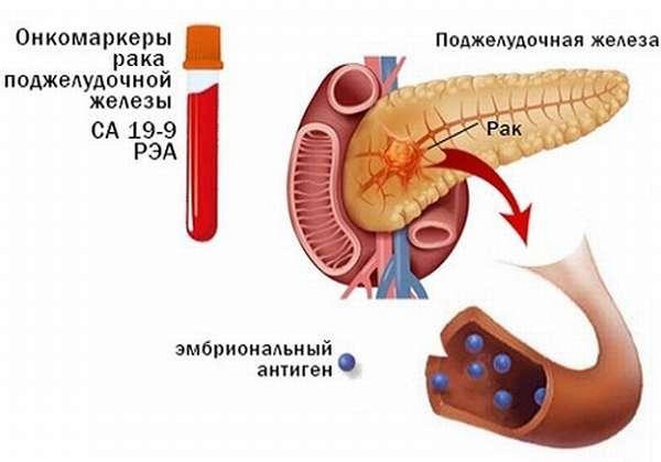 Онкомаркеры рака ПЖ