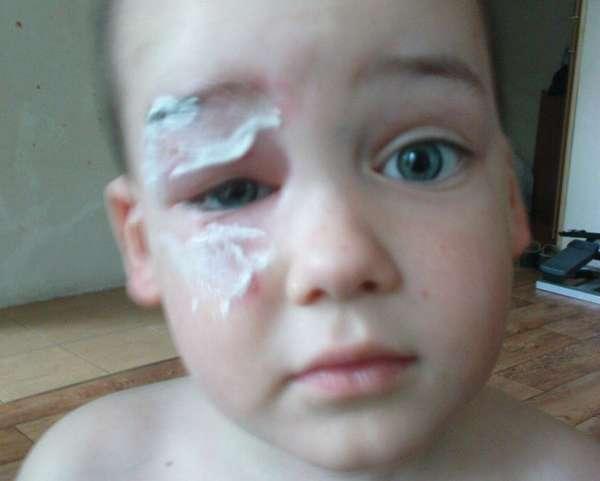 Ребенок ушиб голову чем помазать thumbnail